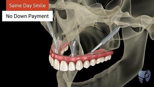 Bonita Dental