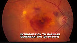 INTRO TO MACULAR DEGENERATION (08/10/19)