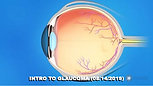 INTRODUCTION TO GLAUCOMA (08/14/2019)