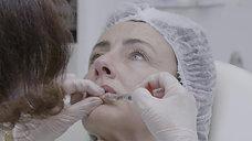 Injections AH lèvres