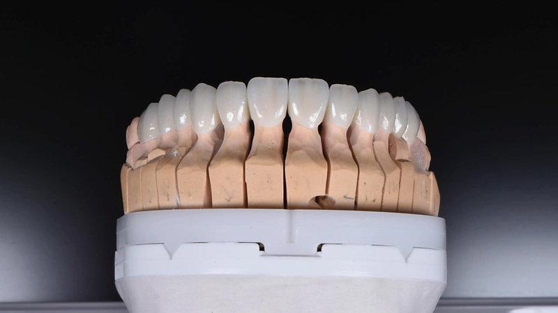 Denta Grey Videolar