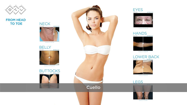 Exilis_Elite_VIDEO_Patient-education-video_1080p_ES100