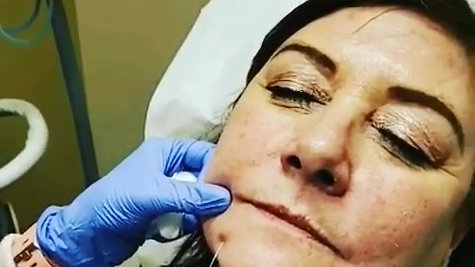 Marionette Lines Treated with Juvederm
