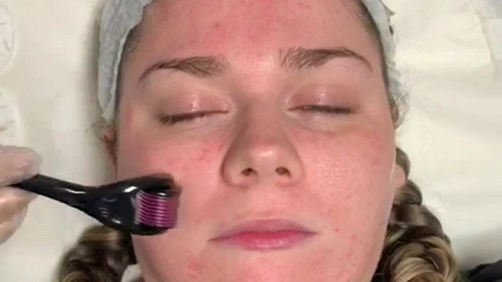 Million Dollar Facial