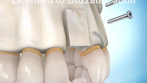 Block Bone Graft for Implant