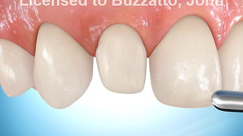 Build-up of Lateral Incisor