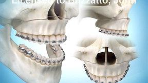 Maxillary Advancement Surgery