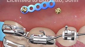 TAD Molar Intrusion (Open bite)