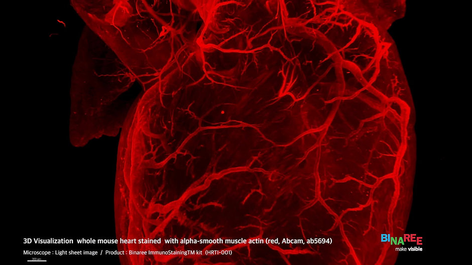 3D Visualization of whole mouse heart