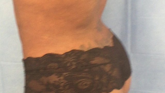 Brazilian Butt Lift and Liposuction Video Gallery