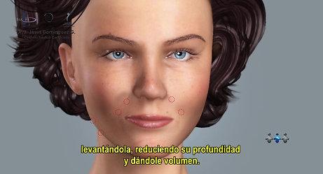 Relleno Facial - Ácido Hialurónico