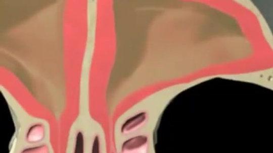 Sinus Treatment NJ
