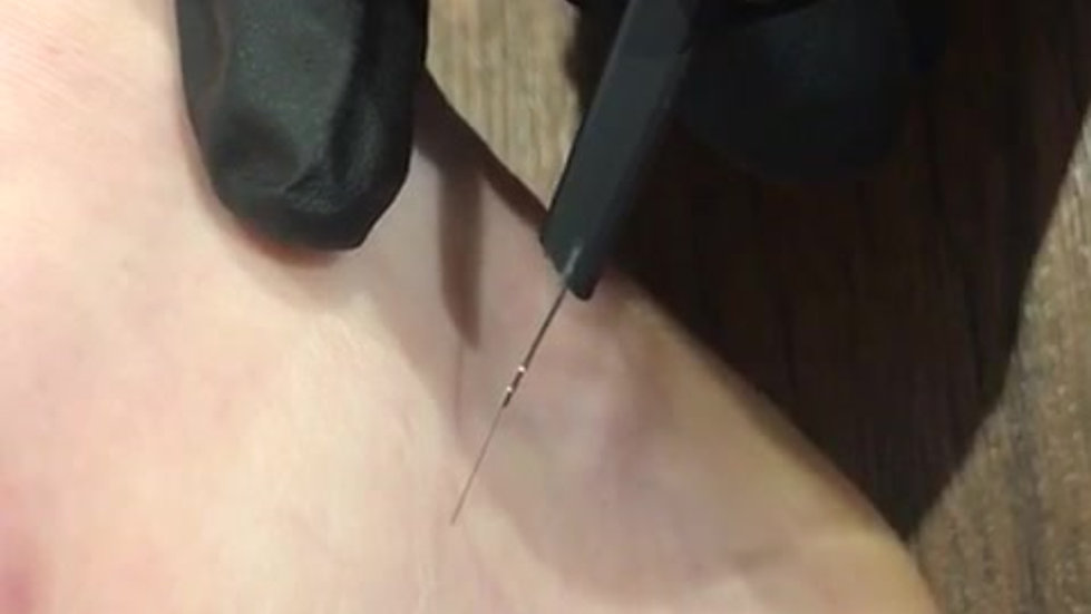 Spider Vein Removal (ankle)