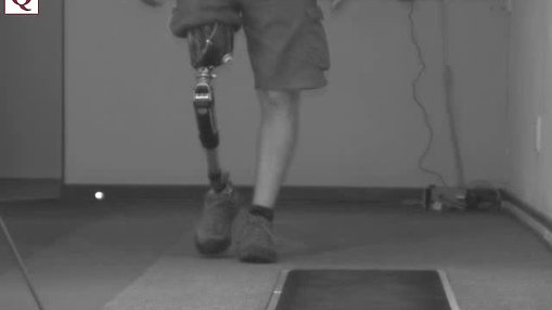 Patient walking with prosthesis - B