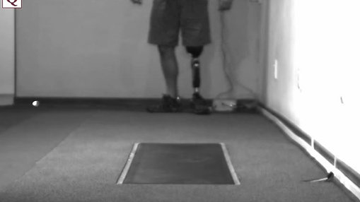 Patient walking with prosthesis - C