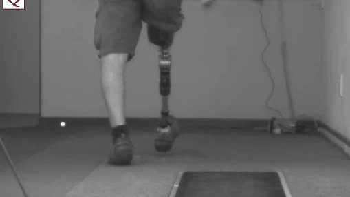Patient walking with prosthesis - A