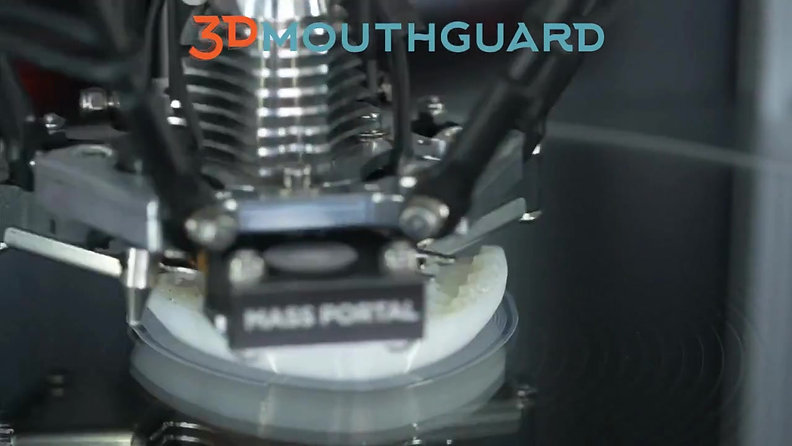 Timelapse of 3Dprinted mouthguard