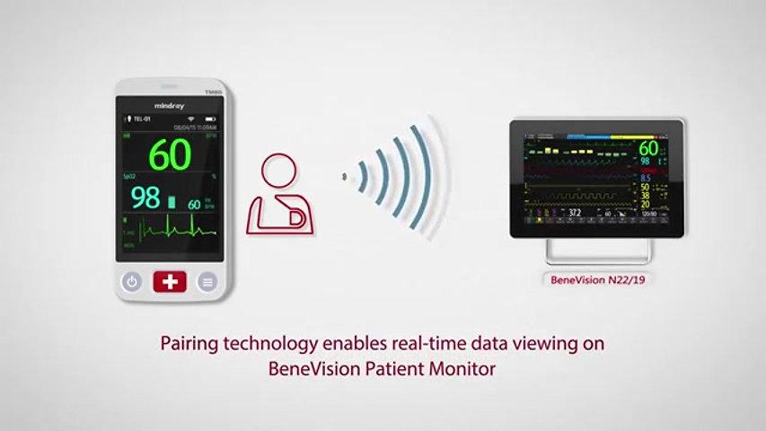 BeneVision TM80 Mindray