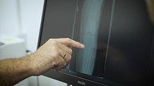 אילו שברים עלולים להתפתח סביב הברך ואיך מטפלים?