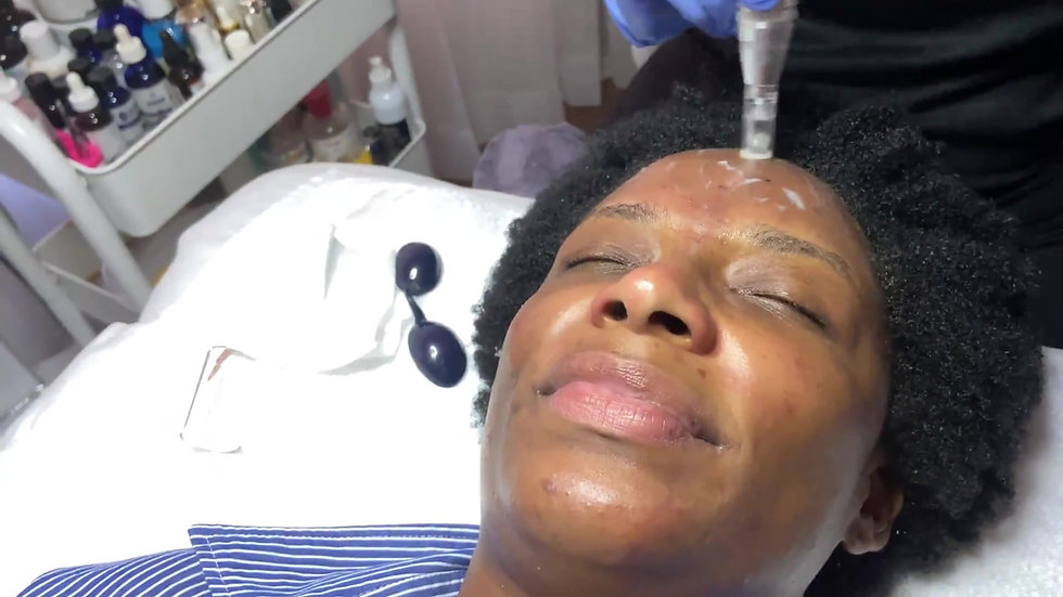 CLIENT SESSION | Pins and MICRONEEDLING!