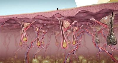 Inmode - DiolazeXL Laser Hair Removal