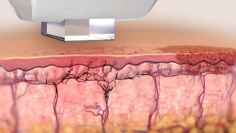 Inmode Lumecca - Skin Renewal & Clarity