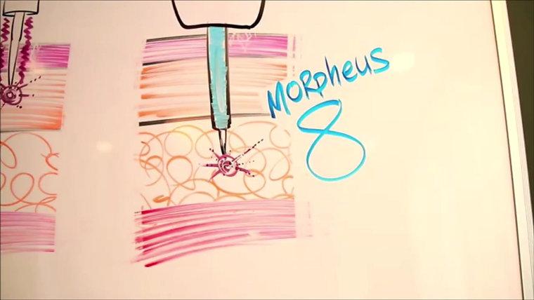 Inmode - Morpheus8 RF Microneedling
