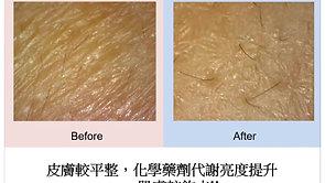 敏感斑印肌膚