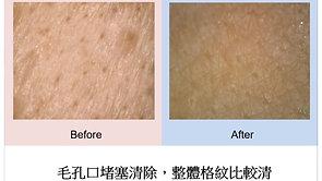 敏感老化肌膚