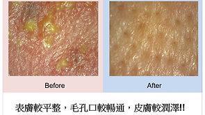 敏感混合型肌膚