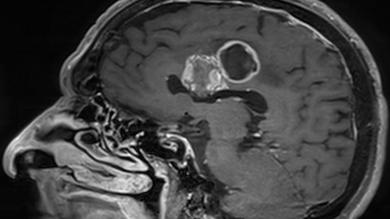 Surgery for Malignant Brain Tumour