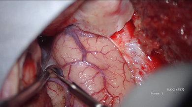 Surgery for Unruptured Brain Aneurysm