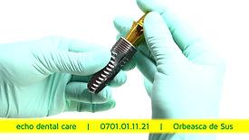 implantologie și chirurgie dento-alveolară