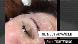 Viora Skin Tightening Promo