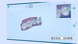 科美口内扫描仪