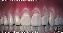 Noah Orenstein Pinhole Gum Surgery explnation video