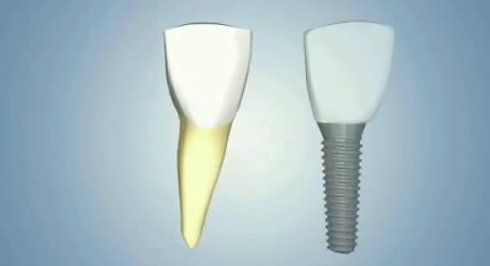 A propos des implants dentaires