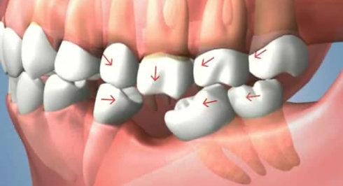 Une dent absente - Conséquences