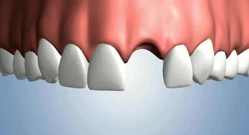 Une dent absente - Options