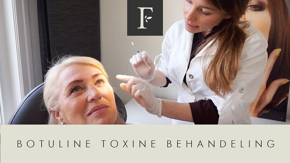 Botox behandeling - Filler Cottage