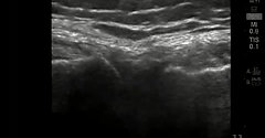 Dr Steven Sampson demonstrates ultrasound exam of the Lateral Meniscus