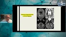 Manifestaciones Neurológicas COVID-19