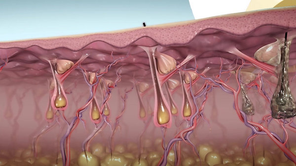 Diolaze Laser Hair Removal Video