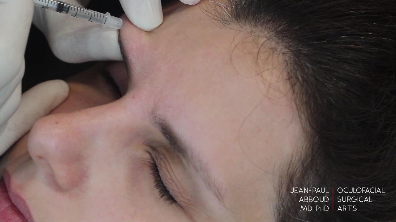 Botox Treatment for Facial Rejuvenation