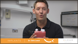 Dr Chris Leech - Implants