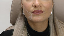 Bocouture / Xeomin full face treatment