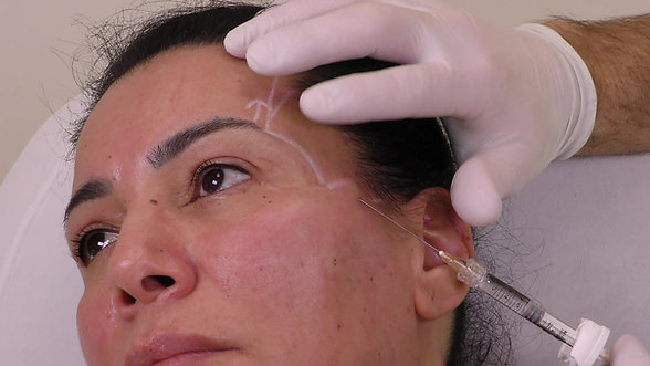 Saudiderm 2021 treatment video Middle Eastern patient