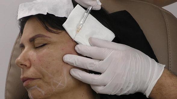 Global Facial Approach Using the Merz Portfolio