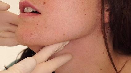 Palpation de la glande sous-mandibulaire
