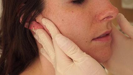 Palpation de la glande parotide